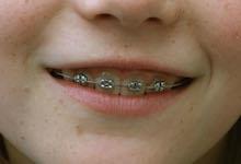 Mädchen mit Zahnspange